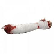 Abgetrennte, blutende Unterarm